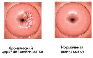 Половая жизнь при лечении цервицита