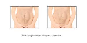 Беременность спустя 7 месяцев после кесарева возможна?