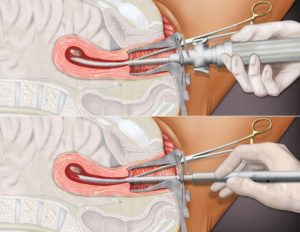 Операция перед месячными