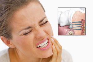 Болит нёбо после удаления зуба