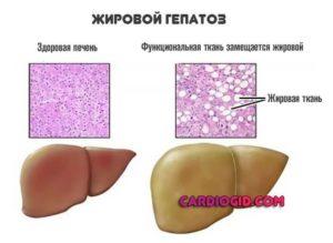 Жировой гепатоз, повышен ггтп