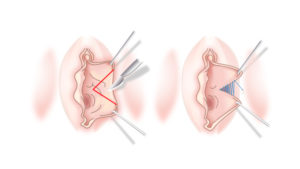 Пластика половых губ, лабиопластика