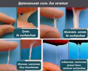 Выделение спермы (не в составе смазки) до оргазма возможно?