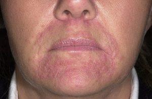 Ухудшение состояния кожи при лечении периорального дерматита