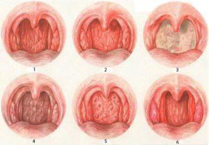 Бессимптомный хронический атрофический фарингит