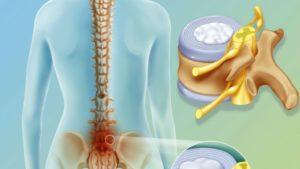 Может ли из-за межпозвоночной грыжи поясничного отдела подниматься артериальное давление?