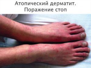 Субфебрильная температура и атопический дерматит