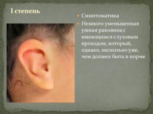 Уменьшается слуховое отверстие в ухе