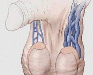 Опухло левое яйцо после операции Варикоцеле