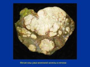 Рак молочной железы с метастазами в кости, легкие и печень