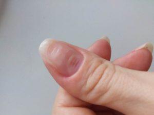 Бугристые ногти на больших пальцах рук