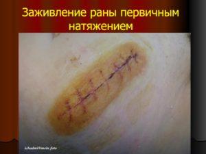 Сфинктеролеваторопластика, незаживающая рана