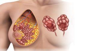 Боль груди при дотрагивании