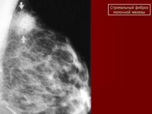 Опасен ли фибросклероз молочной железы