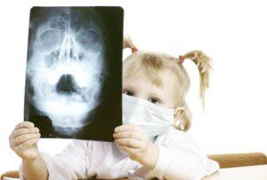 Не лечится острый синусит у ребёнка