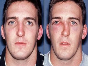 Баня после перелома носа