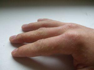 Мелкие прыщики у ребенка на руке между пальцев