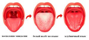 Белый налет на миндалинах и языке