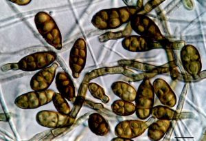 Алергия на грибок Alternaria alternata