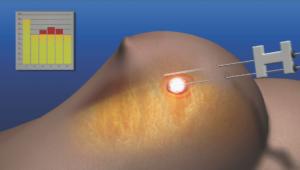 Возможно удаление кисты молочной железы лазером