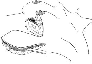 Гистология после секторальной резекции молочной железы, уплотнение
