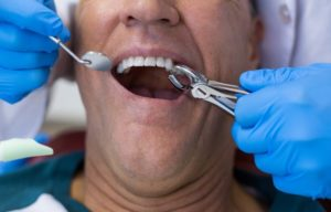 Через сколько после удаления зуба можно лечить другие зубы