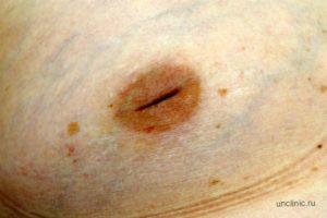 Уплотнение в груди ближе к подмышке