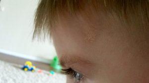 Желтое пятно на виске у ребенка