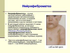 Анализ на нейрофиброматоз