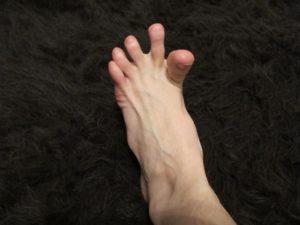Отказала правая нога, не могу пошевелить пальцами на ноге
