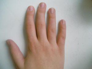 Кривые пальцы на руках