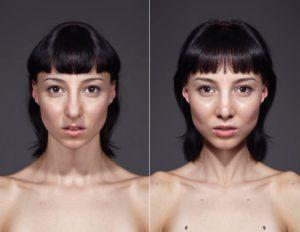 Одна сторона тела меньше другой
