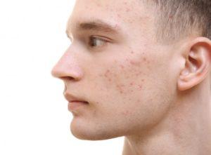Прыщи и угри на лице в 16 лет