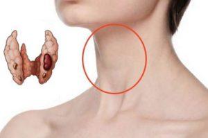 У меня в щитовидке узел уже 15 лет