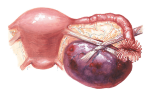Киста яичника в пременопаузе