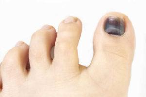 Фиолетовый ноготь на большом пальце ноги, что делать?