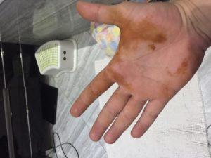 Желтое пятно на руке