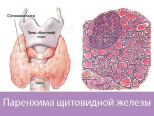 Очаговые изменения в паренхиме щитовидной железы