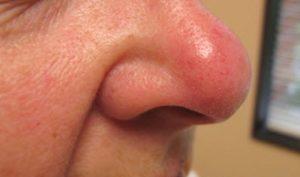 Опухает и краснеет нос