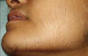 Излишний рост волос на лице