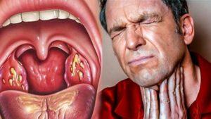 Болит горло четвертый месяц