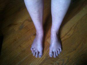Посинели руки и ноги у подростка