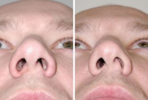Воспаление носовой перегородки
