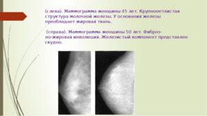 Грубая крупнопетлистая деформация стромы молочной железы