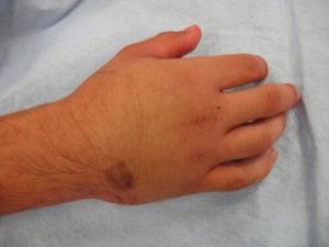 Болит рука после перелома и плохо сростается что делать?