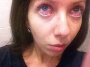 Ожог белка глаза клеем для наращивания ресниц