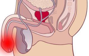 Боли в уретре во время секса
