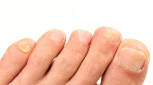 Мягкие и слоящиеся ногти на мизинцах ног