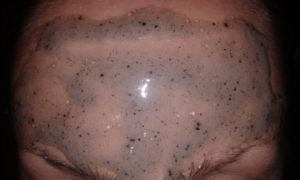 Черно пятно на груди