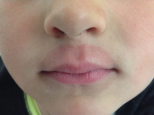 Обветренная кожа вокруг губ